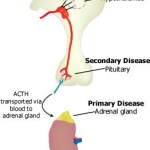 Diagram of the classification of adrenal insufficiency