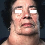 A woman with anaplastic cancer of the thyroid