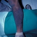 Lichen amyloidosis in MEN2a