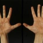 The hands in Men2b