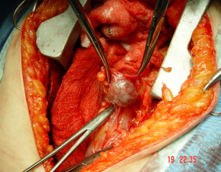Thyroid Parathyroid Adrenal Endocrine Surgery Anatomy Of The