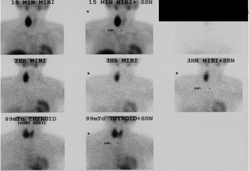 Thyroid Parathyroid Adrenal Endocrine Surgery Prior To